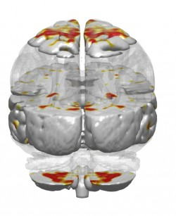 Areas in red show increased symmetrical activity in musicians between the left and right brain hemispheres while listening to music.