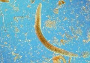 rondwormen